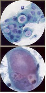 mazok-hlamidiya-trahomatis