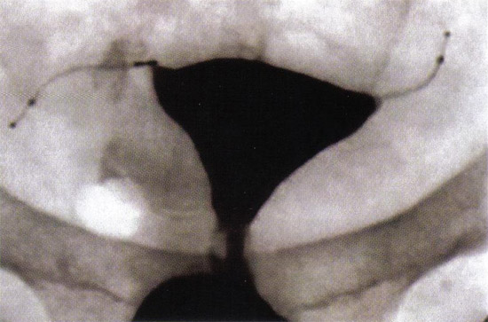 Tubal Occlusion is confirmed at 12 weeks following Essure® (Conceptus, Inc., Mountain View, CA) microinsert placement by hysterosalpingogram.