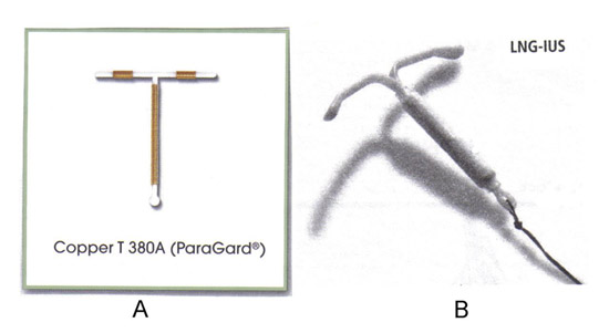 Two types of intrauterine contraception devices are available in the United States. A: TCu380A, ParaGard®; B: levonorgestrel releasing intrauterine system (LNG-IUS), Mirena®