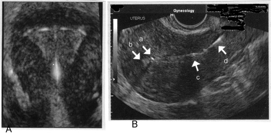 Imaging of intrauterine contraceptive devices with transvaginal ultrasound. A: 3-D image of appropriate fundal position of IUD; B: With this sagittal view, the superior component of the device (a) is imaged in proximity to the fundal portion of the endometrium, (b) confirming appropriate fundal position of the IUD. The inferior component of the device (c) is imaged in the lower uterine segment, and the threads (d) are imaged in the upper portion of the endocervical canal.