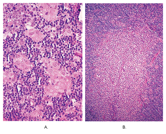 Toxoplasmosis of lymph node. (A) Small non-caseating granulomas composed of epithelioid cells are located at the periphery of hyperplastic follicle. This picture is almost pathognomonic of this disease. (B) An area of massive monocytoid B-cell hyperplasia.