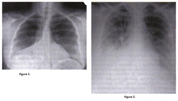 les Risques de Pneumonie Pendant la Grossesse