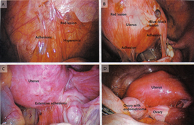 Pathophysiology of Pain and Infertility Associated with Endometriosis