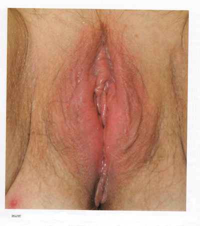 Figure 1 Contact Dermatitis of the Vulva