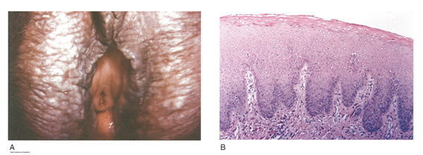 Figure 6 Squamous Cell Hyperplasia