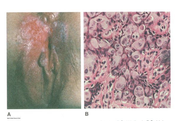 Figure 7 Paget's Disease of Vulva
