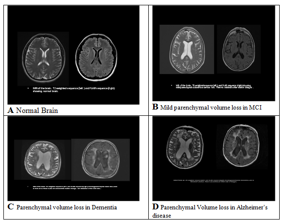 MRI image of cerebral atrophy and other abnormalities that are associated with decreased cognition or dementia