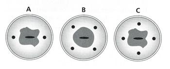 Diagram Direct Cervical Injection Sites