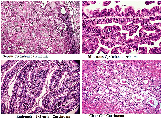 Histology of Ovarian Cancer