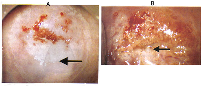 Fig. 1 Images of abnormal colposcopic findings