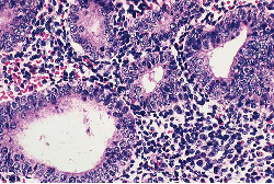 disordered proliferative endometrium