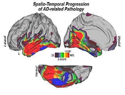 PET imaging in Alzheimer disease patients
