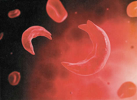 image, microscopic view of sickled red blood cell