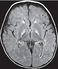 Figure 4. Axial FLAIR showing bilateral, symmetrical hyperintensities in the globus pallidus
