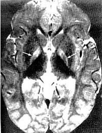 Figure 5. Magnetic resonance of 21-month-old with kernicterus.