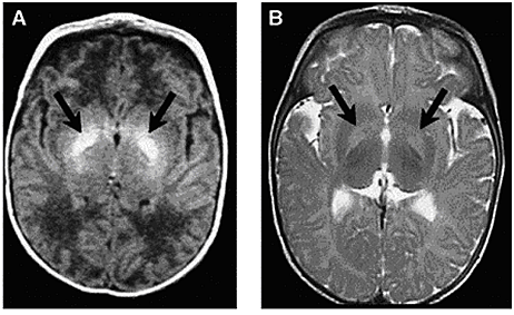 Figure 4. Axial MRI of bilateral hyperintense lesions