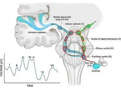 Figure 5. The auditory pathway and normal auditory brainstem response