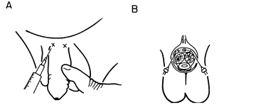 picture of penile nerve block technique