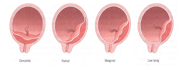 Types of placenta previa.