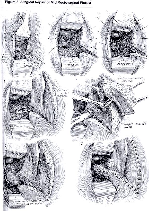 Icd 9 code vaginal fistula